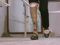 Low cost, quality prosthetic